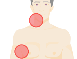 Outline of a torso showing lumps in two places