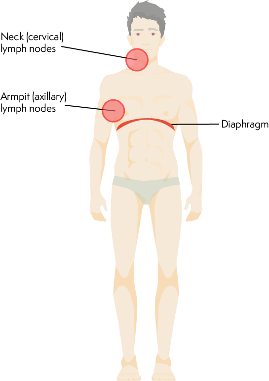 Image showing two or more groups of lymph nodes affected either above or below the diaphragm