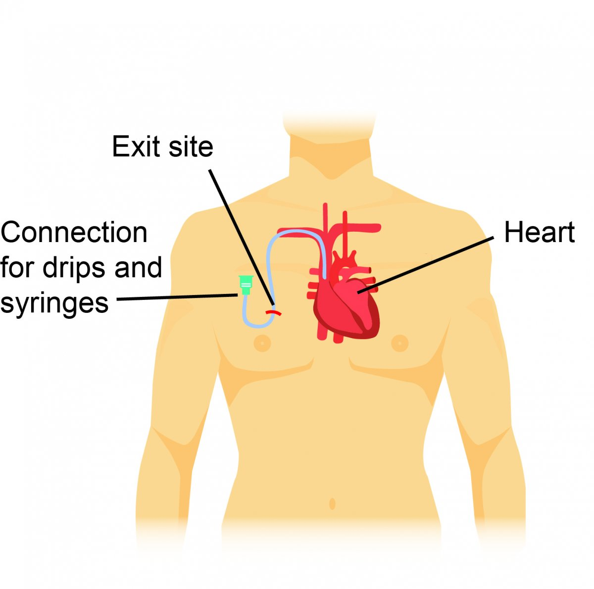 Diagram showing tube going under skin in chest and linking to vessel near the heart - a Hickman central line