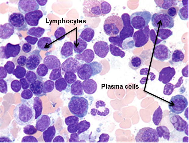 Picture of cells seen under a microscope where the lymphocytes and plasma cells are both stained purple/blue but look different.