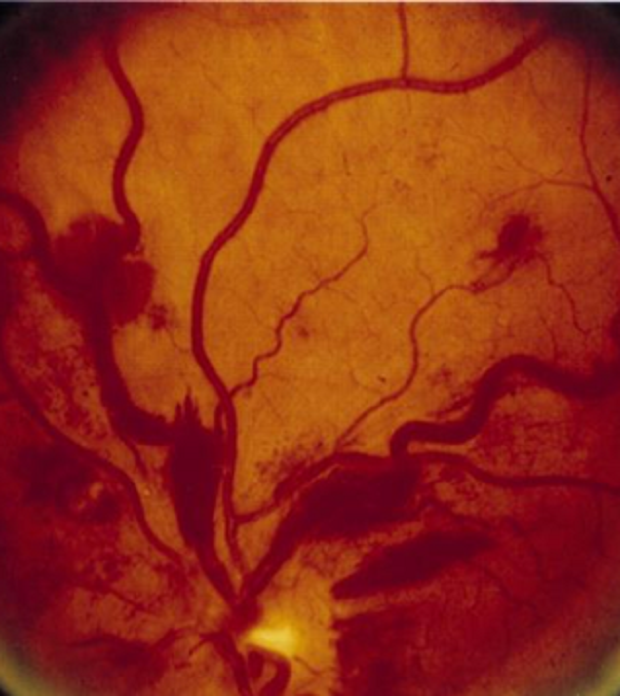 Blood vessels in an eye with hyperviscosity where the vessels look thick and blotchy