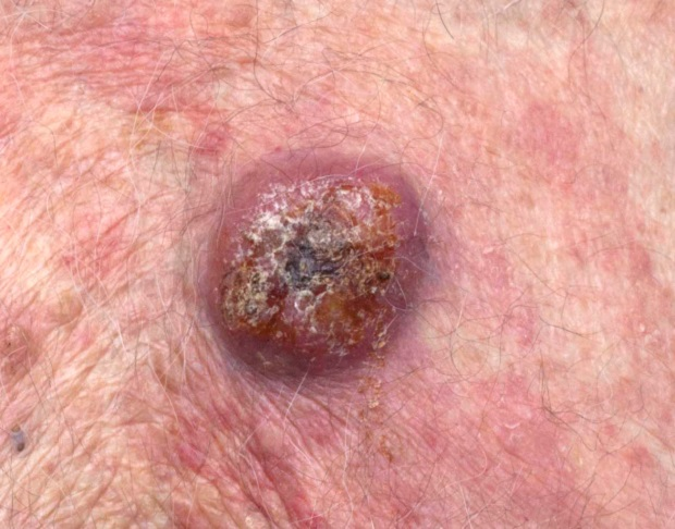 A tumour that has ulcerated and scabbed over