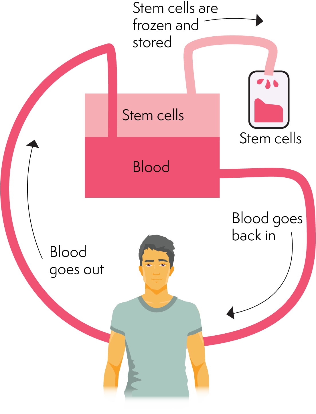 Diagram showing blood coming out of the body, having the stem cells removed and frozen, and the remainder of the blood going back into the body.