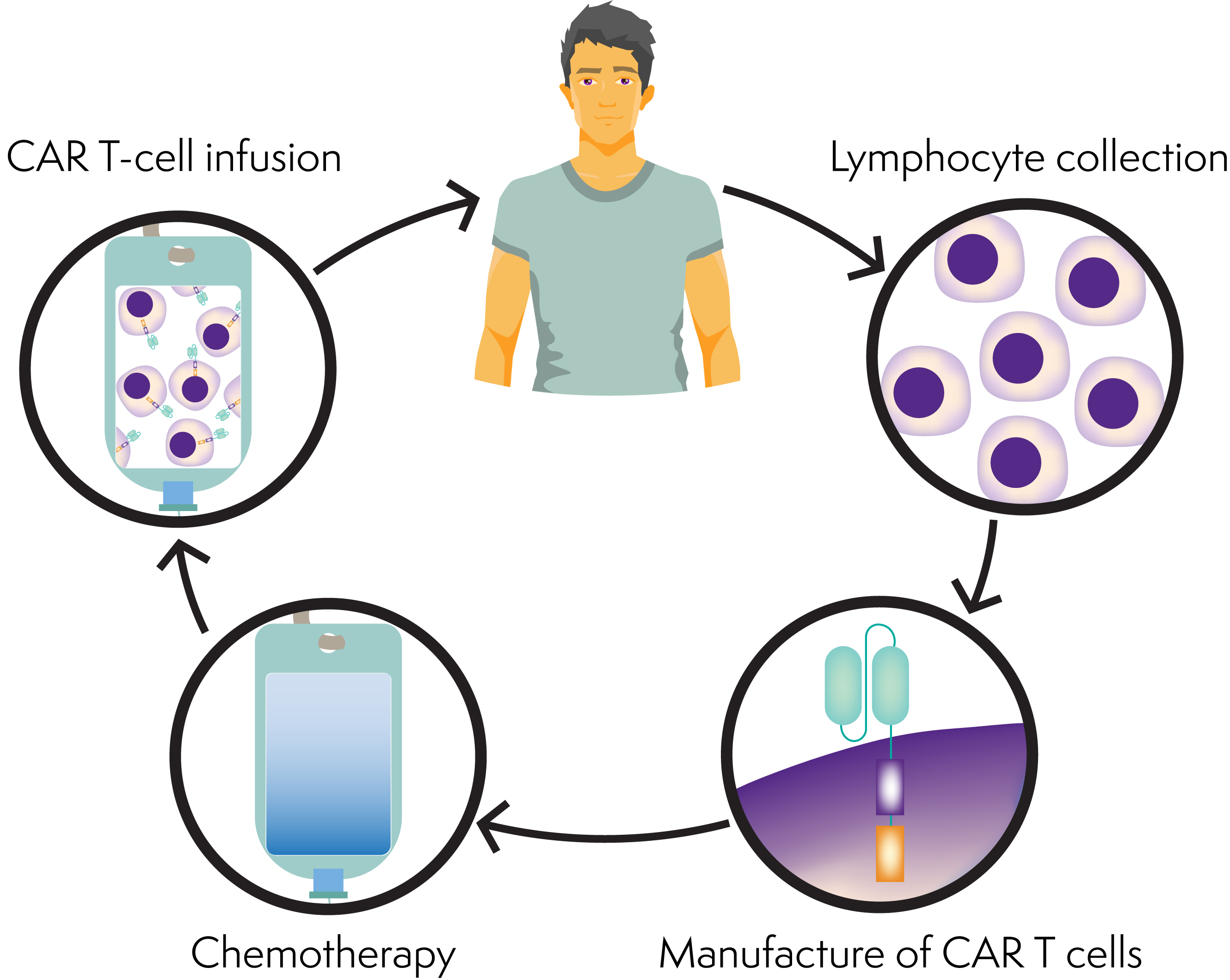 Diagram showing the CAR T cell process: lymphocyte collection, manufacture of CAR T cells, chemotherapy, and CAR T-cell infusion