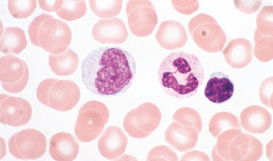 Microscope slide showing lymphocytes stained purple.