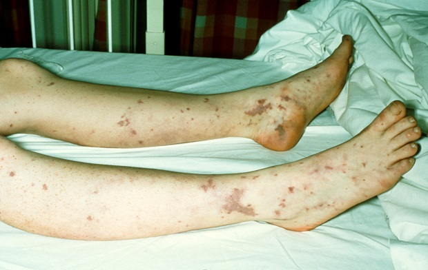 Legs showing small red or purple patches on, called purpura.