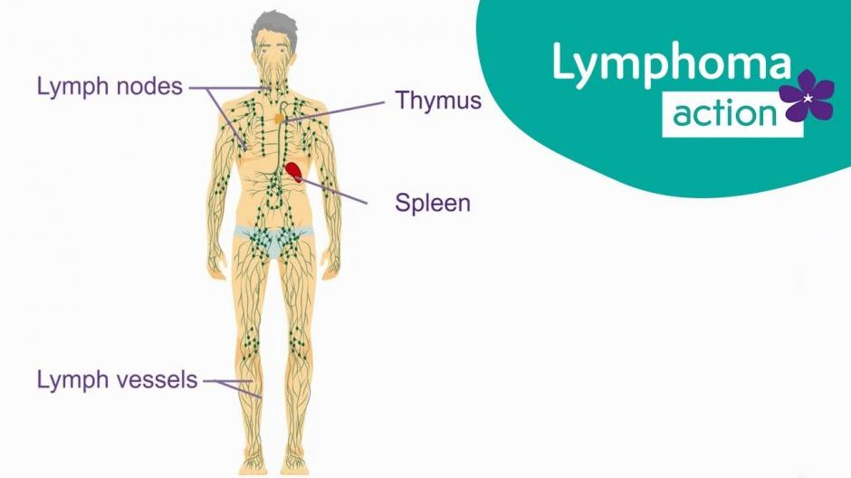 776004311 What is lymphoma